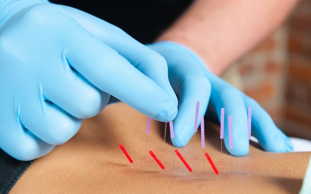 Dry Needling as an Alternative Treatment for OA Knee Pain